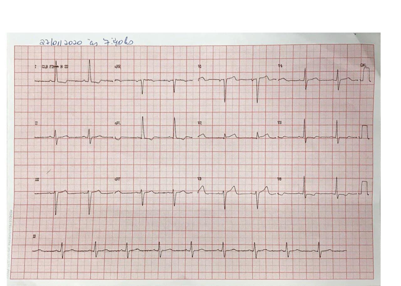 Hombre de 59 años HTA y DBT en IRC dialítica que presenta EAP y en quién se constata estenosis de arteria renal derecha
