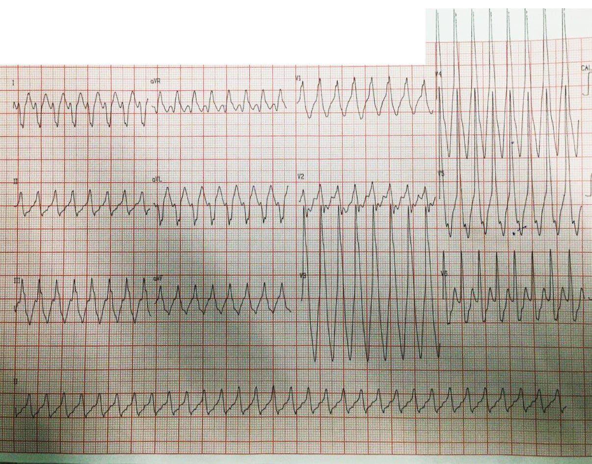Joven de 22 años con palpitaciones y disnea por presencia de TSV por vía accesoria pósterolateral