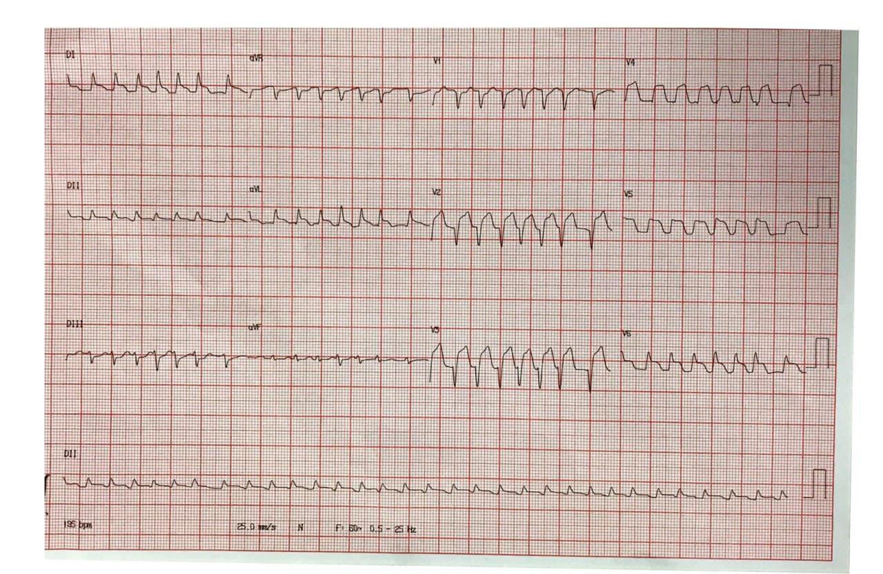 Mujer de 80 años con palpitaciones, mareos y sudoración que presenta FA con alta respuesta ventricular en contexto de IAMCEST por compromiso de la DA