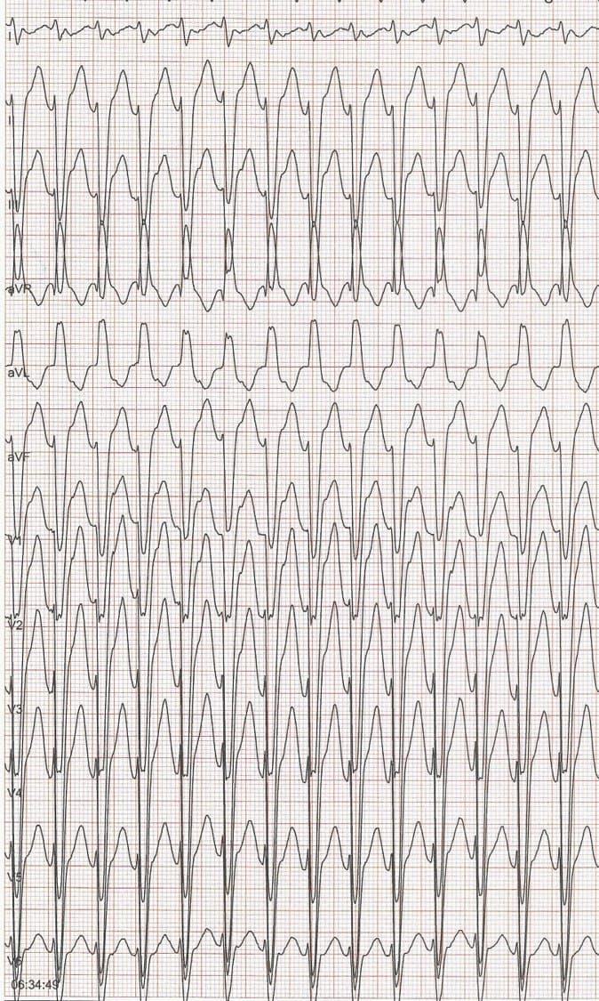 Mujer de 77 años, hipertensa y diabética con palpitaciones por presentar una TPSV que puede sospecharse por •  una onda 'r' inicial < de 30 ms •  un intervalo desde el comienzo de la onda R al pico de la S < 40 ms