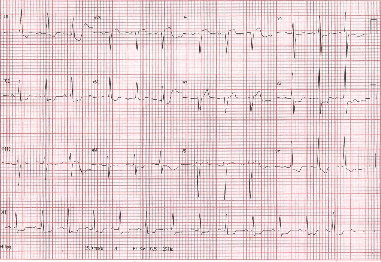 Mujer de 73 años, hipertensa no tratada que presenta epigastralgia con CCG normal por lo que los cambios en el ECG se interpretan como pseudo isquemia circunsferencial por HVI