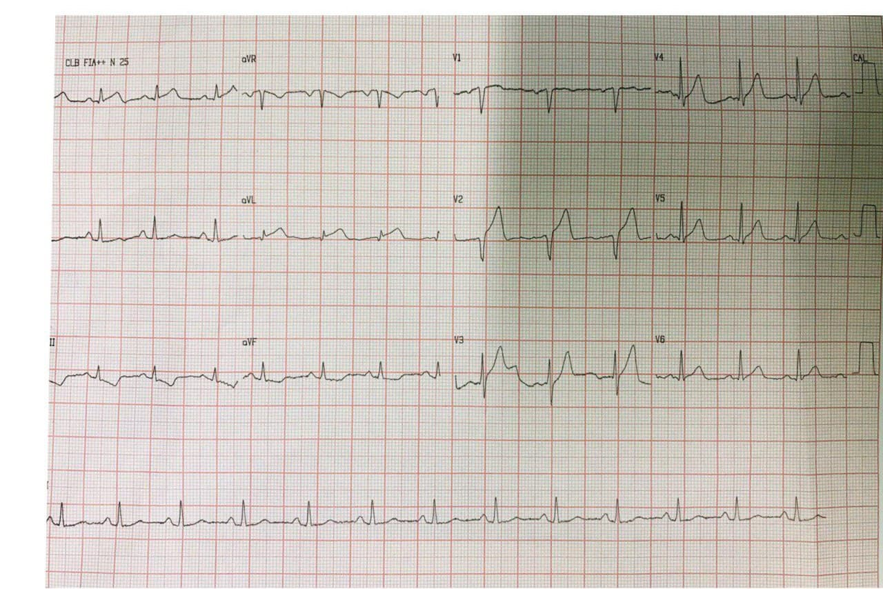Hombre hipertenso de 59 años que presenta episodio de ángor prolongado con sobreelevación del segmento ST en DI y aVL sin depresión del segmento ST de V1-V2 a V3-V4 por compromiso de 1º diagonal