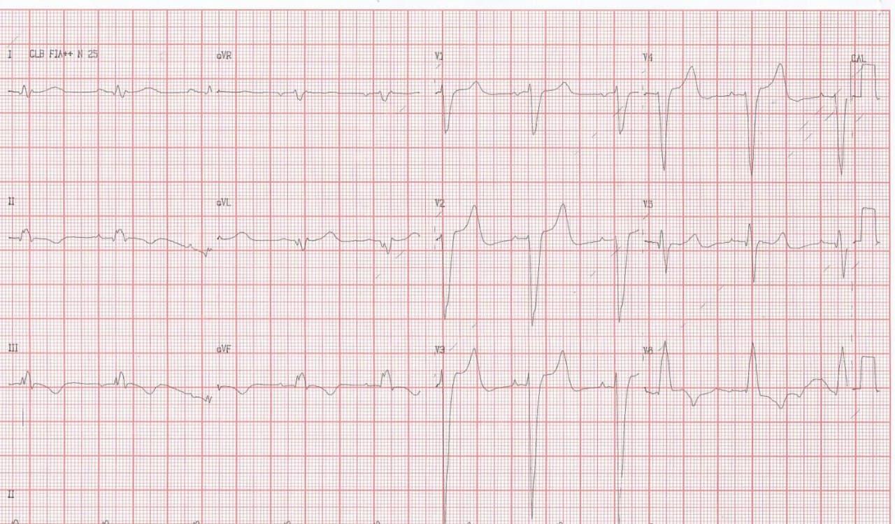 Paciente portador de miocardiopatía dilatada en insuficiencia cardíaca que presenta troponina positiva y CCG normal