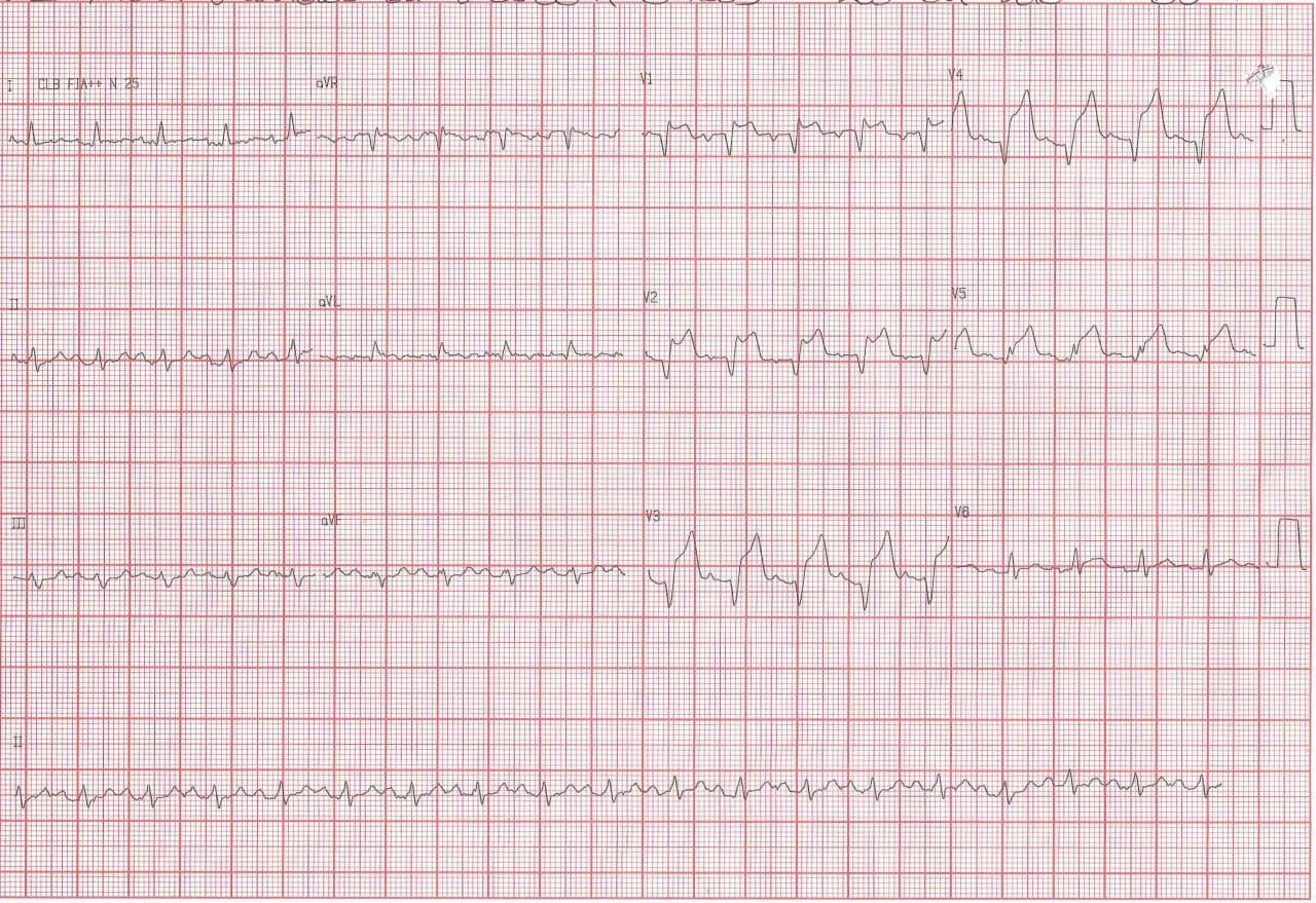 Paciente de 69 años con múltiples factores de riesgo que cursa SCACEST por compromiso de la DA con desarrollo ulterior de CIV muscular