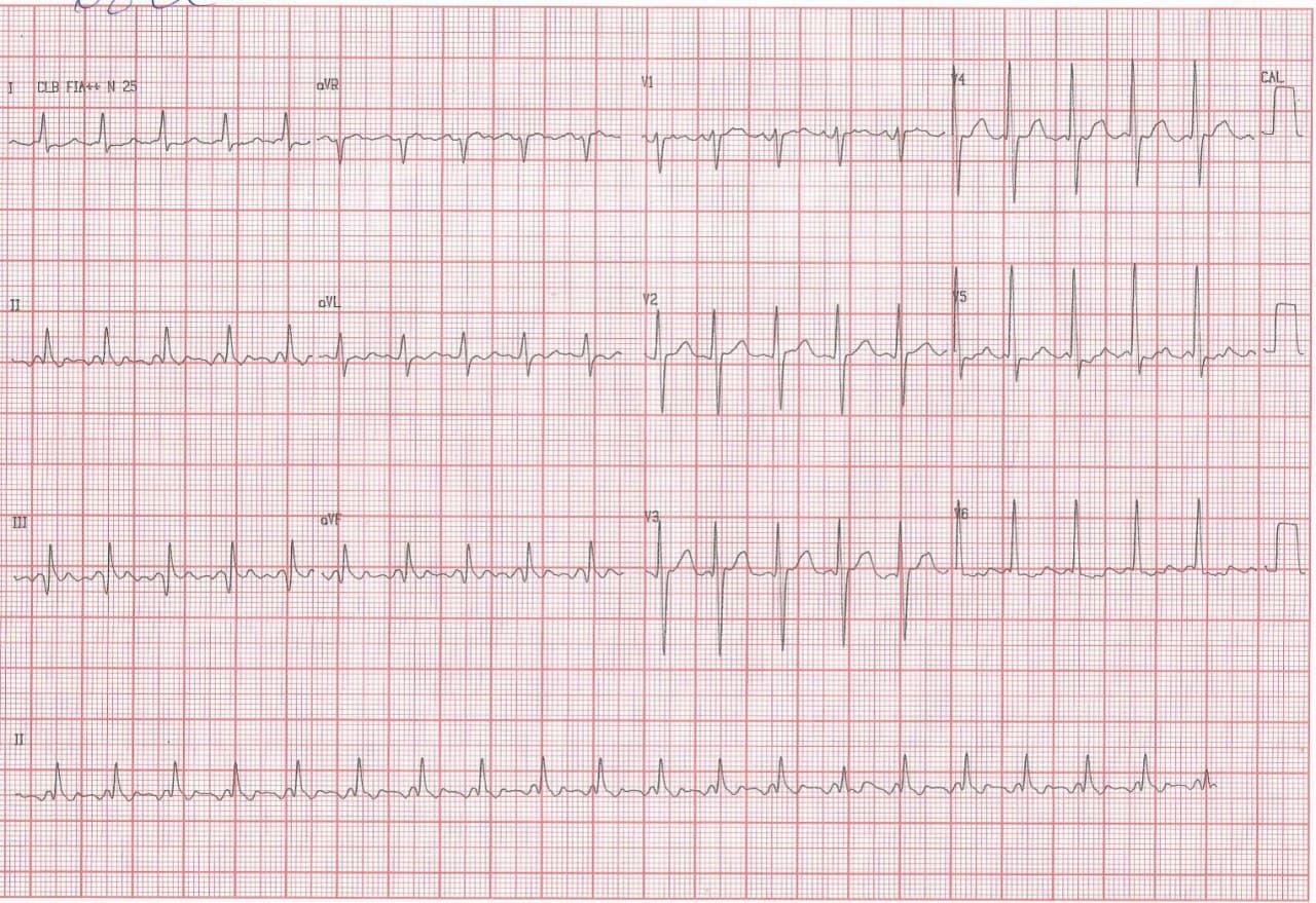 Paciente masculino de 68 años con múltiples factores de riesgo y antecedentes de episodios de disnea paroxística que presenta aleteo auricular 2:1 y severas lesiones coronarias
