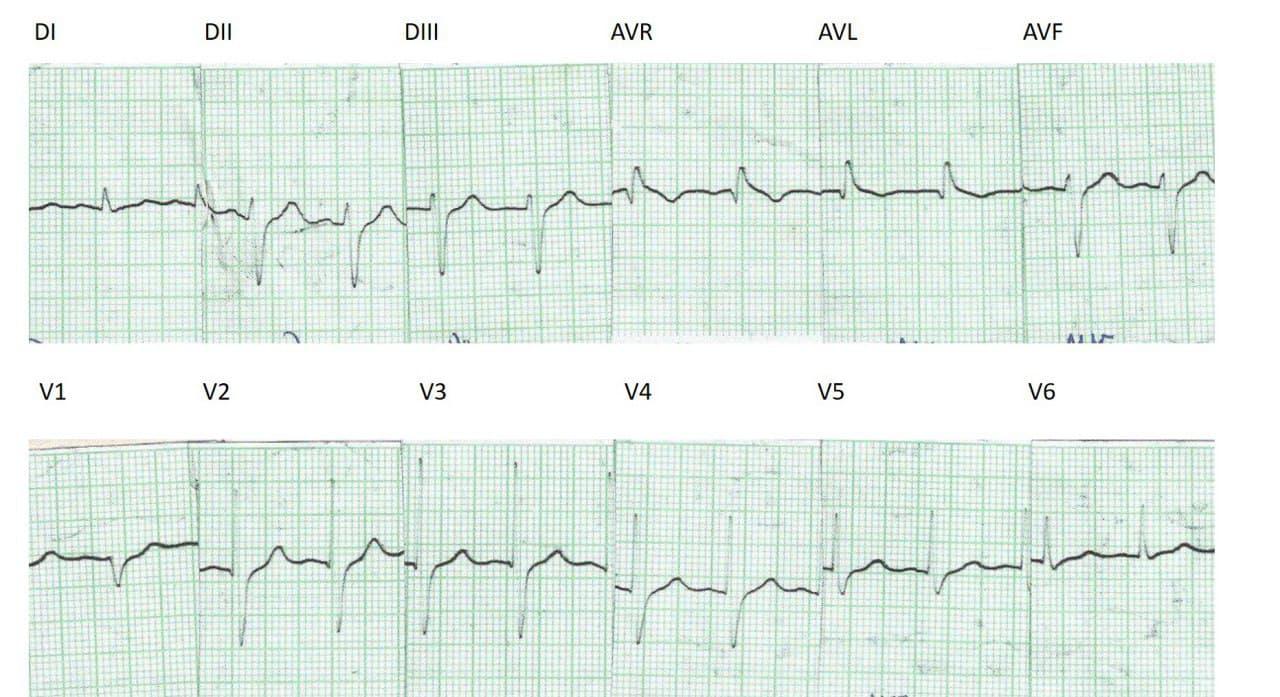 Evolución electrocardiográfica entre 1990 y 2007 de mujer portadora de enfermedad de Chagas determinando BDAM que se agrega al HbAI preexistente