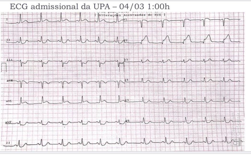 Mujer de 49 años hipertensa que comienza con ángor de reposo atribuible a disección espontánea de la DA proximal que luego se extiende a TCI y Cx