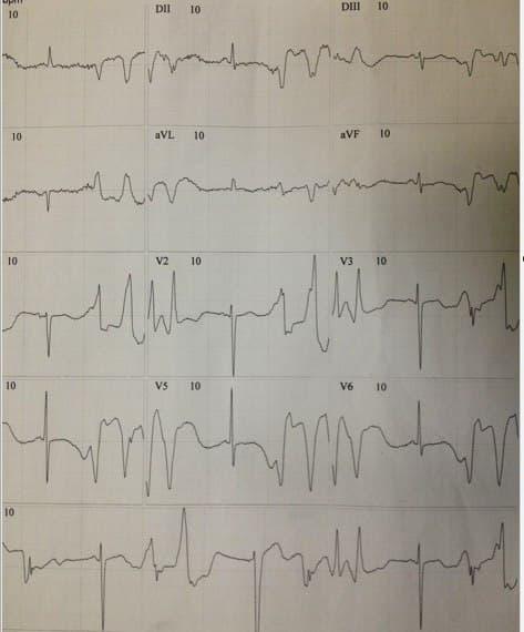 Mujer de 69 años en tratamiento con antimoniato de meglumina por una leishmaniasis cutánea que presenta episodios sincopales y gran astenia y debilidad en quién se constata severa hipopotasemia con posterior desarrollo de ondas T de memoria cardíaca