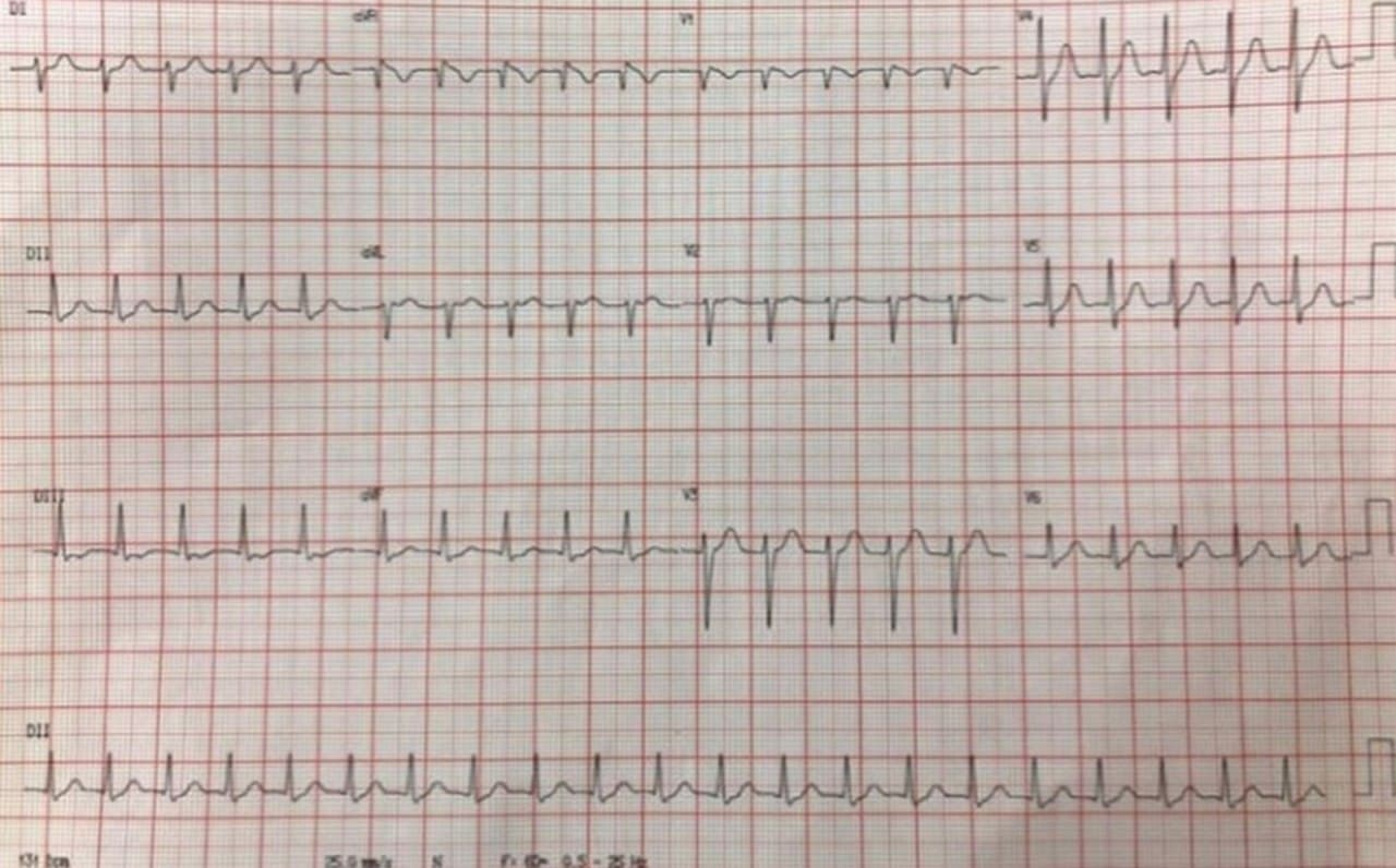 ECG correspondiente a una taquicardia por reentrada intranodal típica (TRIN) que responde a adenosina. Nótese las flechas  indicando Ia onda P retrógrada y el patrón de seudobloqueo de rama derecha en la derivación V1 . El RP es <80 ms