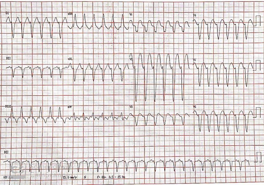 Paciente portador de miocardiopatía dilatada que presenta taquicardia erróneamente interpretada como TV y es tratado con amiodarona dejando en evidencia un aleteo auricular 2:1