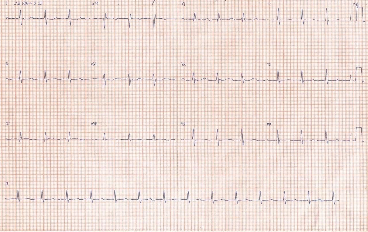 Mujer de 40 años con palpitaciones por ocurrencia de taquicardia auricular 2:1 en la que puede constatarse la regla de Bix debida a presencia de un sarcoma de aurícula izquierda