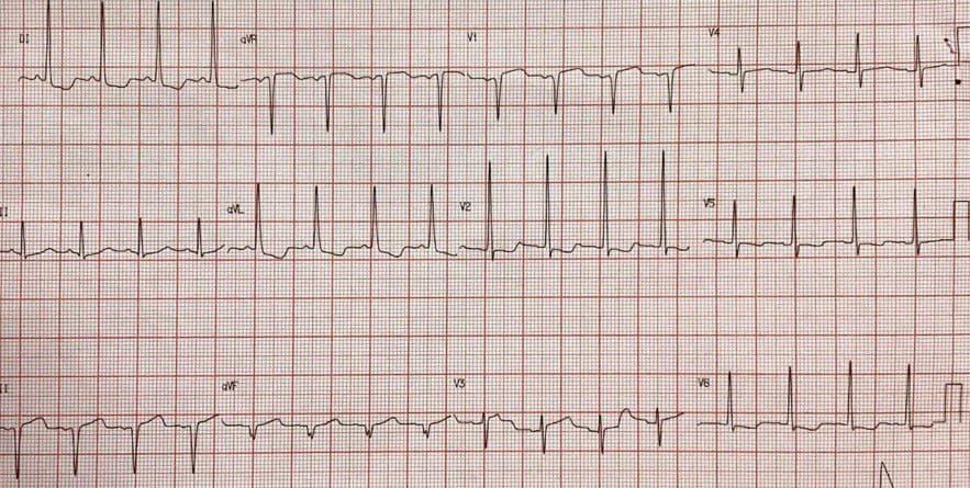 Hombre de 66 años hipertenso y diabético con antecedente de implante de stent a la DA hace 6 meses que presenta angor y disnea con presencia de BDAM agudo en el ECG, que requiere angioplastia del stent ocluído