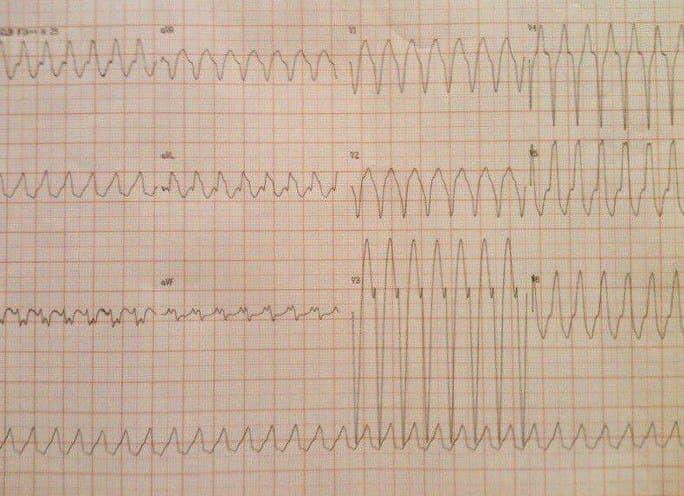 Trazado que muestra una taquicardia de QRS ancho con FC cercana a 220 lpm con respuesta a MSC con despolarización inicial muy rápida que sugiere origen SV y que corresponde a aleteo auricular