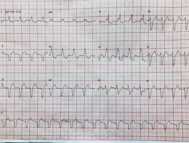 Paciente portador de miocardiopatía dilatada con CCG normal que presenta bloqueo trifascicular con patrón de «bloqueo de rama enmascarado»