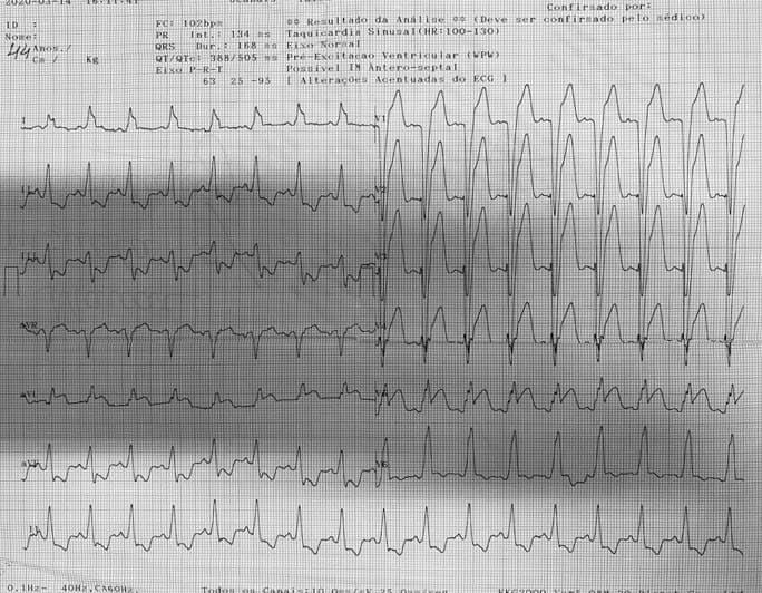 Paciente de 75 años portador de BRI crónico que consulta por malestar general, náuseas y vómitos por presentar SCA por oclusión de la DA con criterios de Sgarbosa modificado +