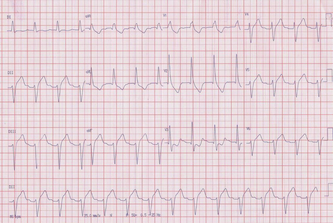 Paciente hipertenso de 63 años que presenta dos episodios sincopales cuyo ECG muestra BCRD + BDAS + BDAM + PR prolongado sugiriendo bloqueo tetrafascicular