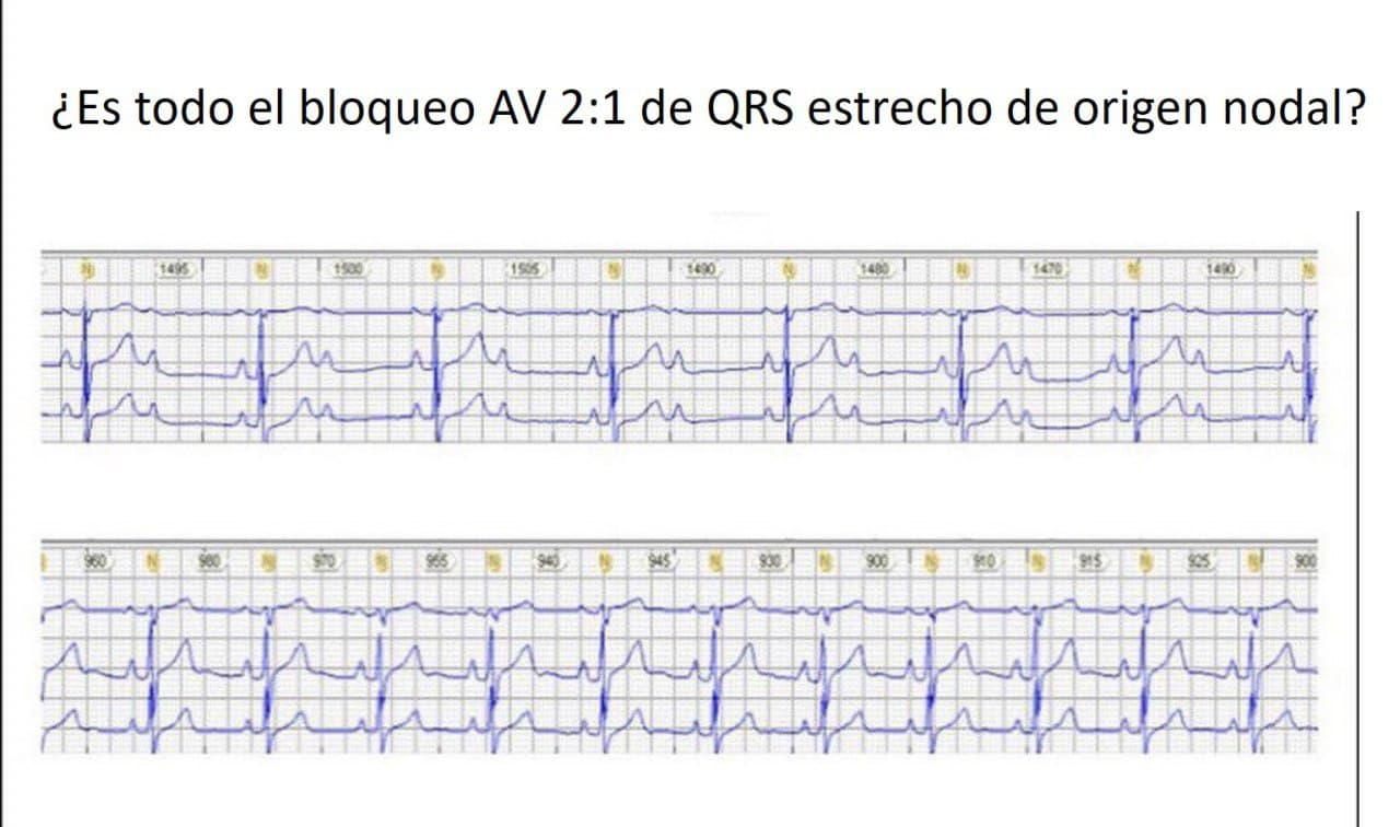 Trazado que presenta un BAV 2:1 que mejora durante el sueño a 1:1 lo que descarta localización nodal y avala localización hisiana del bloqueo