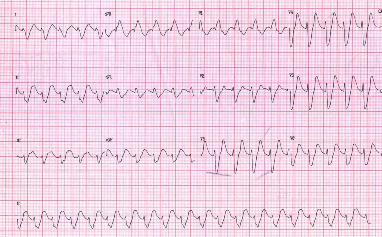 Paciente masculino de 50 años, diabético tipo II que presenta epigastralgia, náuseas y  vómitos que concurre con taquicardia de complejos anchos que resulta ser una TPSV con aberrancia a punto de partida en severa hiperK por IRC que se corrige