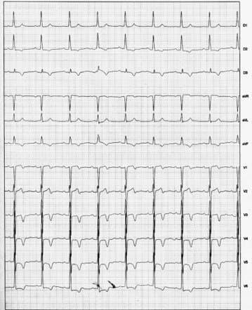 Mujer de 80 años a quién se implantó MP doble cámara por enfermedad del nódulo sinusal cuyo ECG presenta onadas T de memoria cardíaca