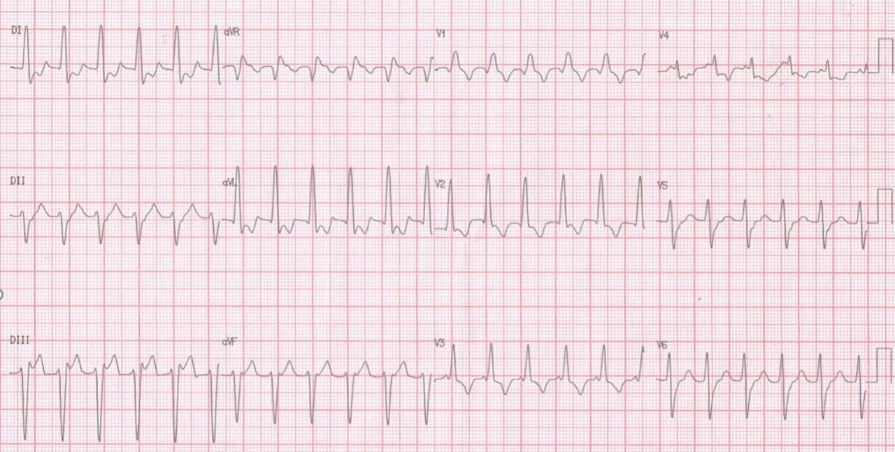 Mujer de 54 años portadora de miocardiopatía dilatada que cursa con taquicardia de QRS ancho  con un patrón de BRD, bloqueo fascicular anterior izquierdo, y quizás también  fascicular septal izquierdo (R prominente en V2) con reversión espontánea