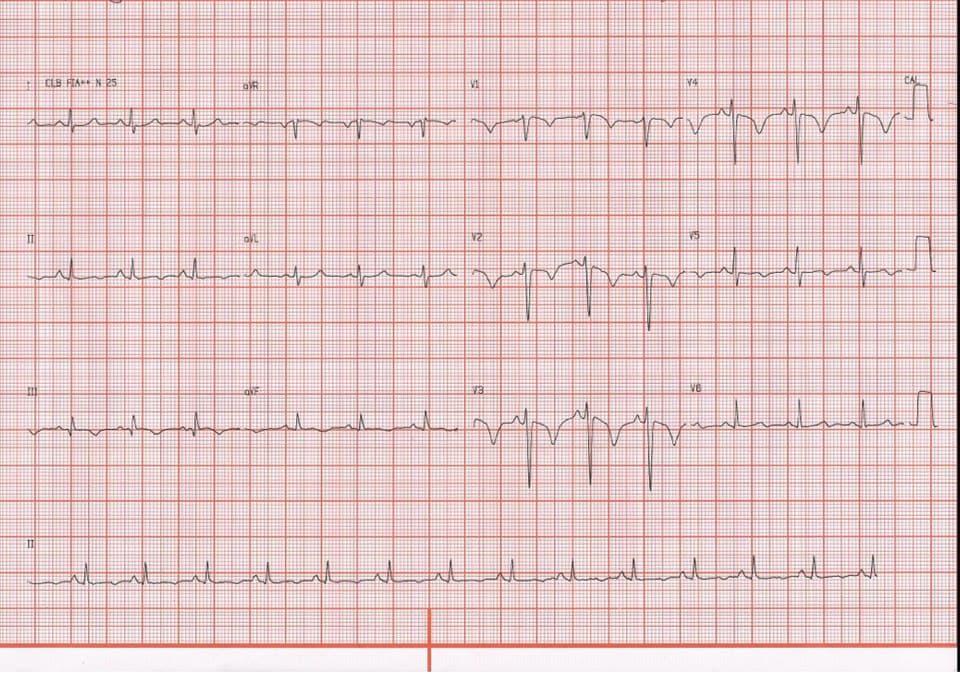 Paciente masculino de 32 años que cursa con precordialgia y disnea progresivas por TEP bilateral en portador de síndrome antifosfolipídico