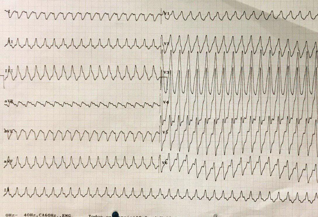 Paciente masculino de 66 años portador de miocardiopatía chagásica que presenta una TV epicárdica
