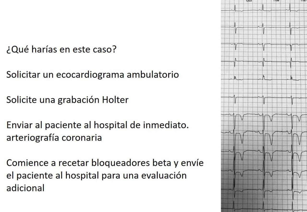 Hombre de 69 años, hipertenso asintomático cuyo ECG fue erróneamente interpretado como isquémico por presencia de T negativas que expresan memoria cardíaca