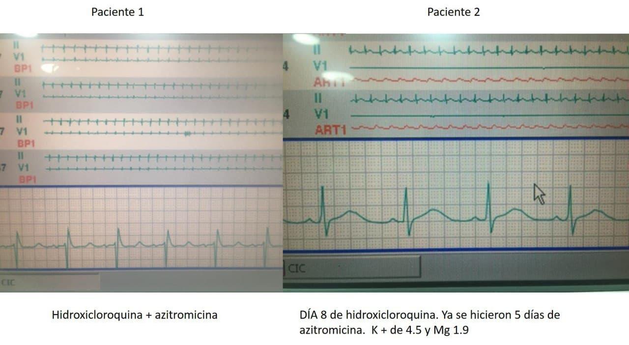 ECG de dos pacientes COVID + tratados con hidroxicloroquina + azitromicina que muestran respectivamente QT prolongado con riesgo de desarrollar arritmias ventriculares