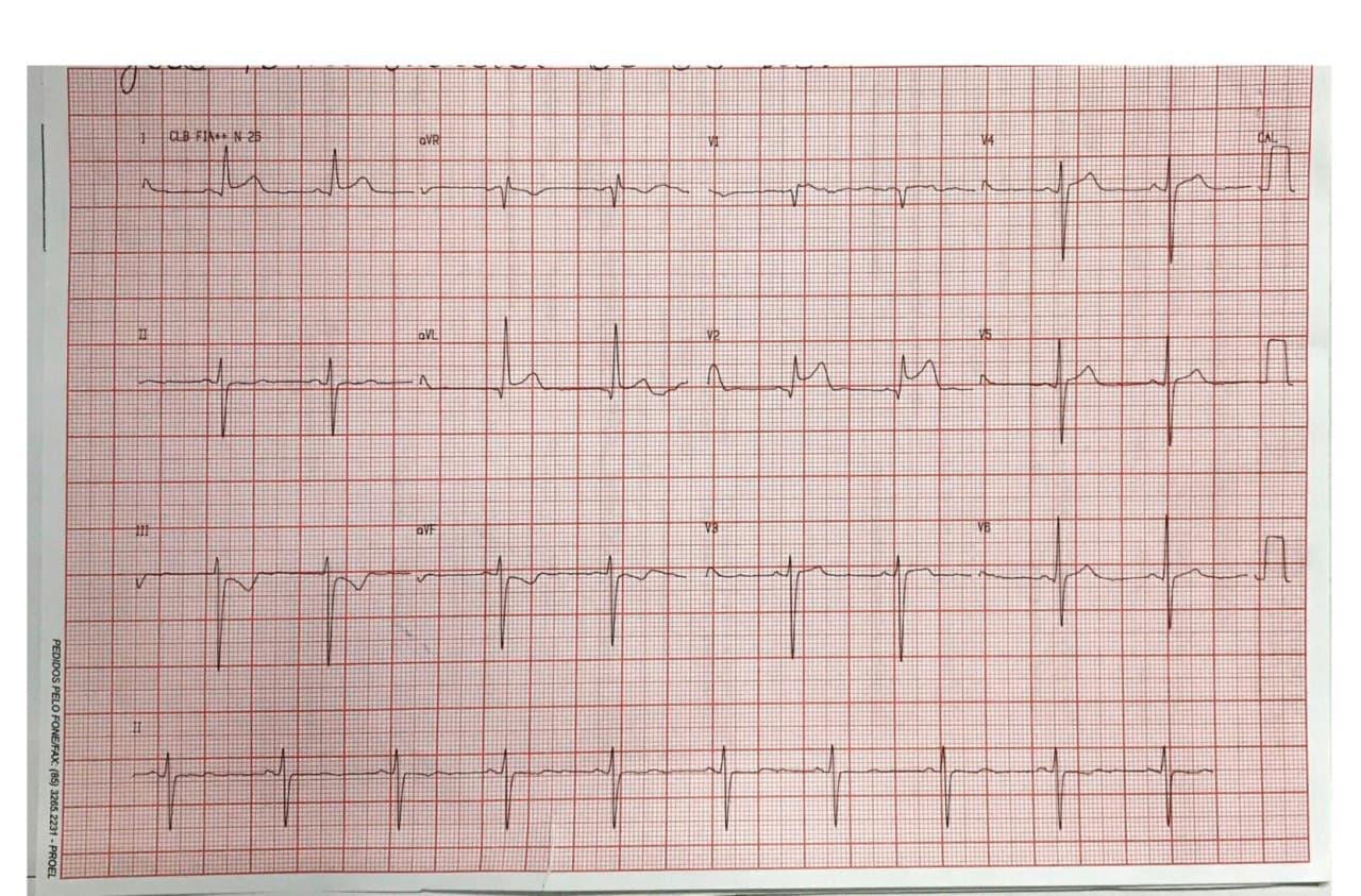Hombre de 63 años con múltiples factores de riesgo que presenta episodio de ángor prolongado debido a SCA por compromiso de 1º diagonal