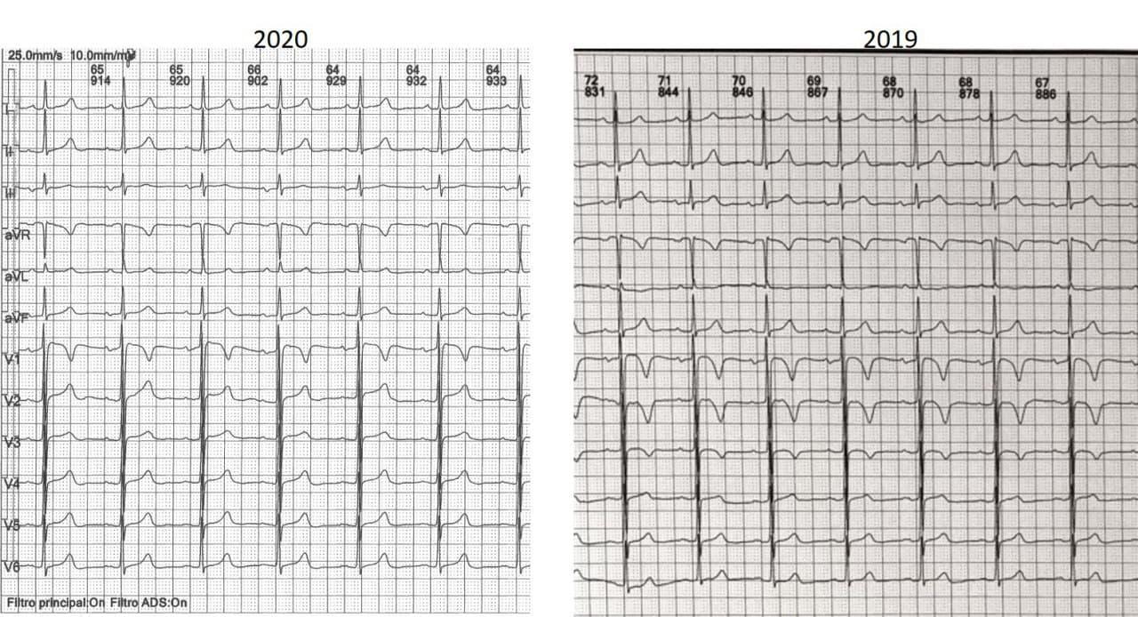 Mujer de 71 años, hipertensa, que presenta bloqueo interauricular progresivo asociado,  en el contexto de miocardiopatía hipertrófica