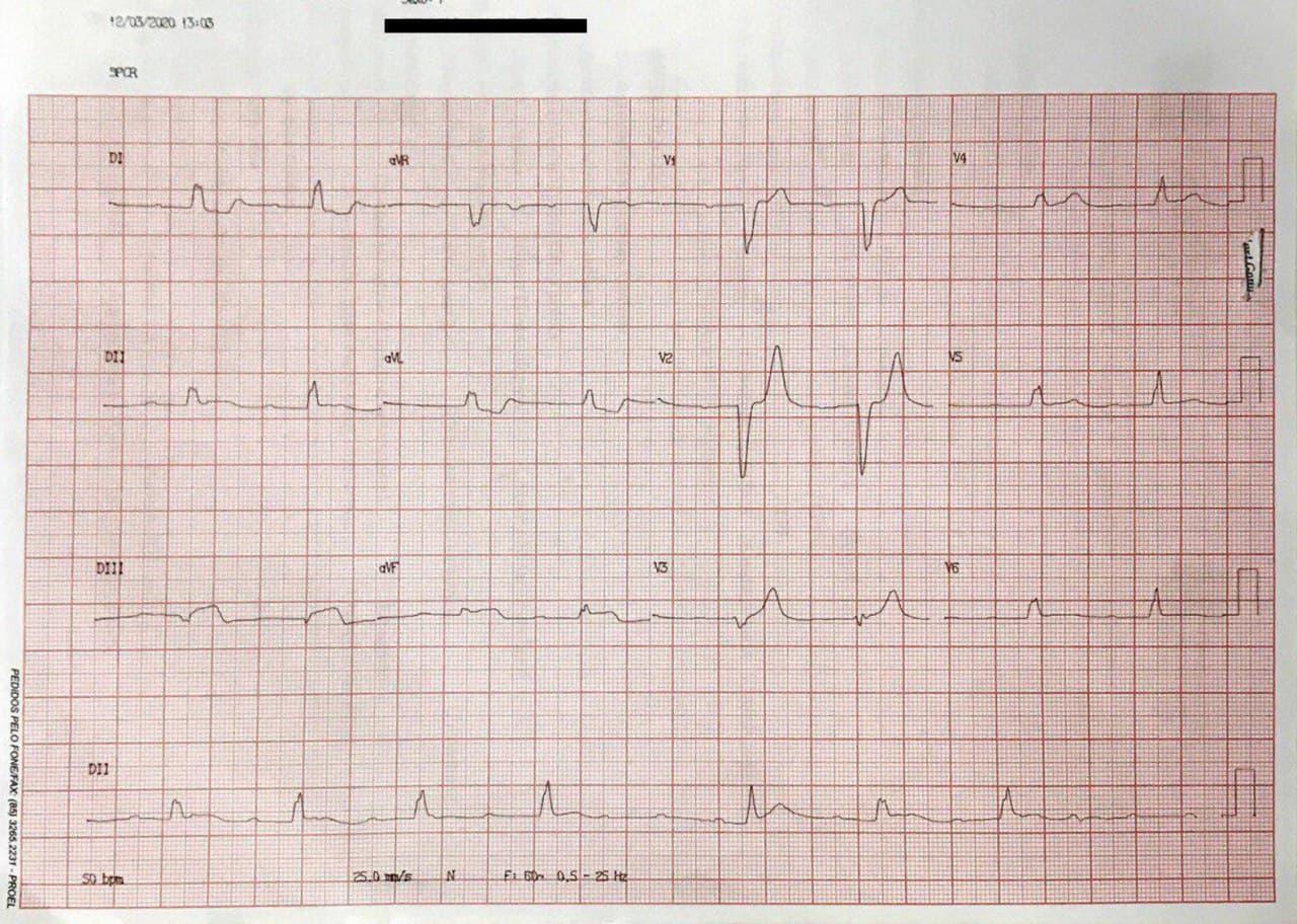 Trazado correspondiente a paciente con SCA que presenta BAVC  debido a enfermedad coronaria de tres vasos