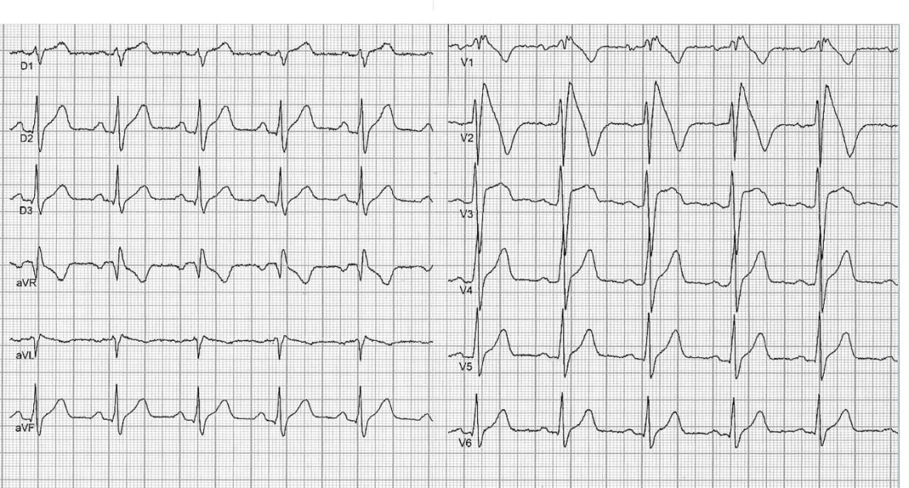 Dos pacientes portadores de síndrome de Brugada que presentaron TV polimórfica y FV en el estudio electrofisiológico, muestran como factores de riesgo adicionales, fQRS el primer trazado y repolarización precoz el segundo