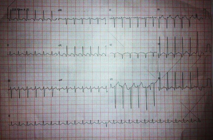Hombre de 75 años hipertenso y diabético que presenta taquicardia auricular 2:1 que no responde al MSC y sí en cambio a la adenosina EV