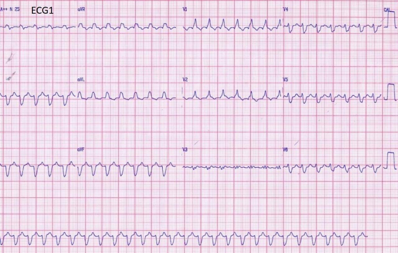 Hombre de 74 años que hace 9 días presentó cuadro de IAM que se complica con TV que evoluciona a aleteo ventricular y FV que requiere CVE
