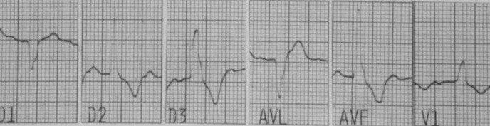 Paciente de 57 años que presenta episodio sincopal por presencia de bloqueo trifascicular que requiere colocación de MP transitorio que muestra pérdida de captura