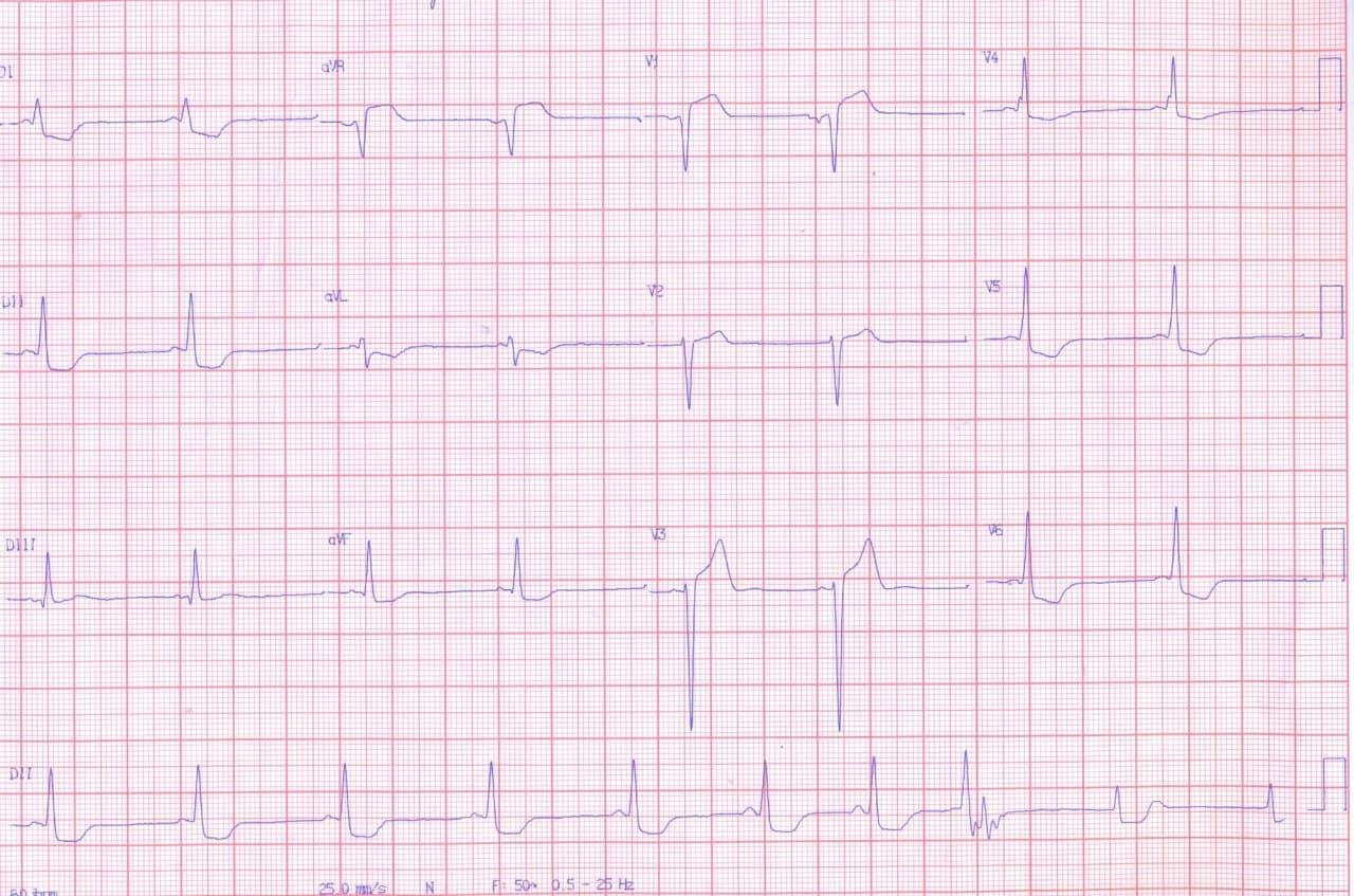 Hombre de 60 años portador de enfermedad de Chagas que concurre a emergencias por dolor precordial y disnea desde hace tres meses que presenta taquicardia de QRS ancho acompañada de hipotensión que requiere CVE y que muestra CCG normal