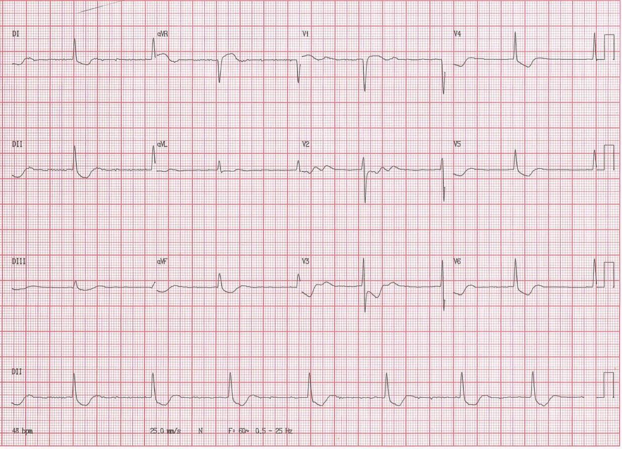 Paciente de 57 años con antecedentes de FA tratado con digoxina que presenta dolor precordial atípico, náuseas y vómitos cuyo ECG muestra ritmo de la unión como expresión de intoxicación digitálica