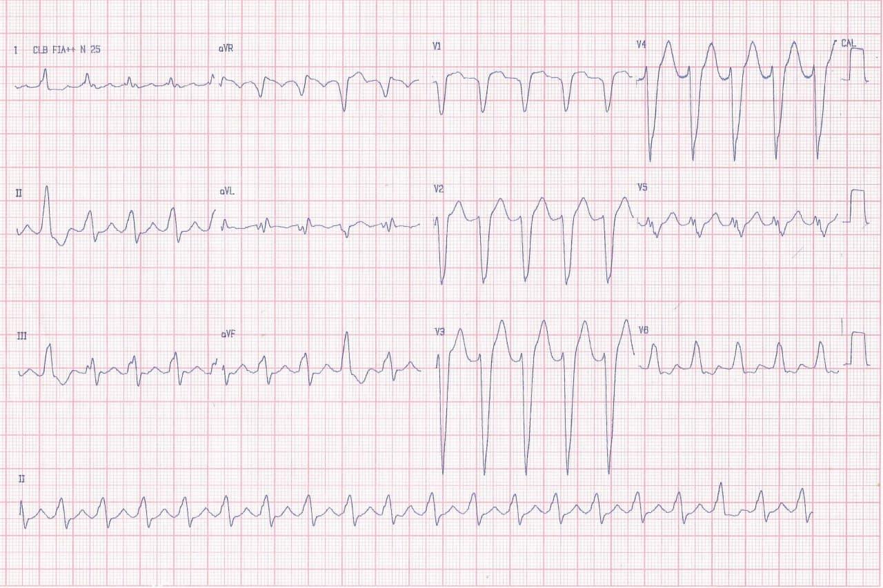 Varón de 46 años portador de miocardiopatía dilatada con severa disfunción sistólica que cursa con fatiga, hipotensión y disnea que presenta taquicardia auricular 2:1 con signos de crecimiento ventricular derecho