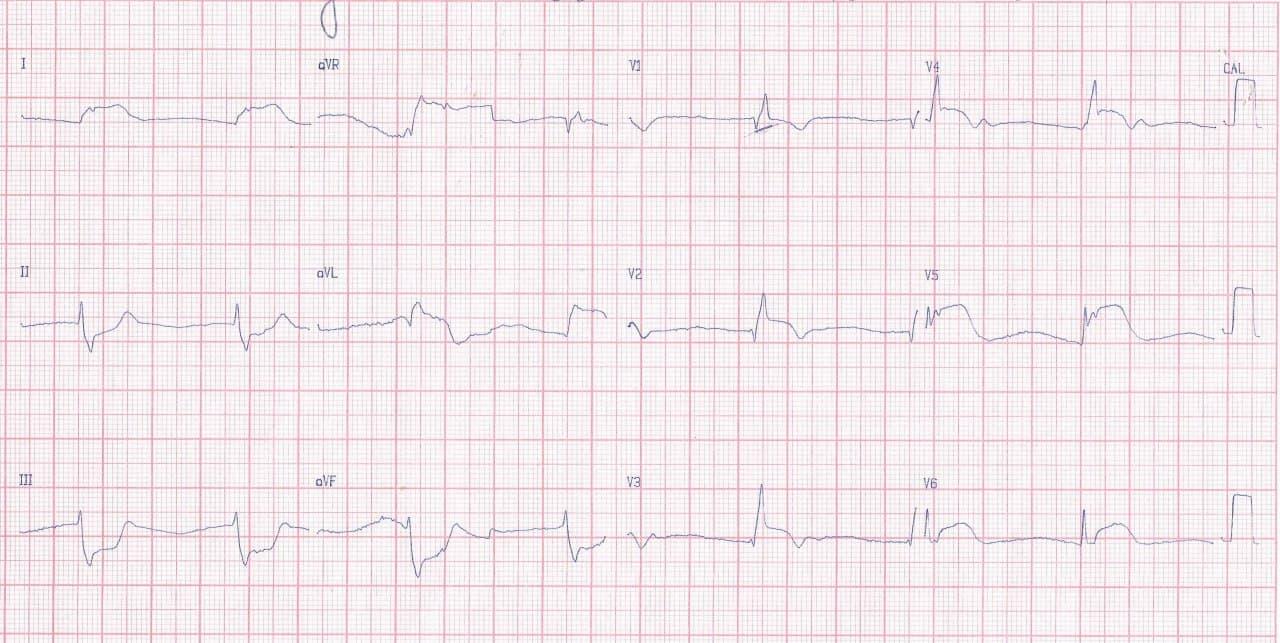 Hombre de 68 años que presenta episodio de ángor prolongado por SCA que presenta shock cardiogénico y evolución al óbito debido a oclusión de TCI cuyo ECG además muestra disociación AV