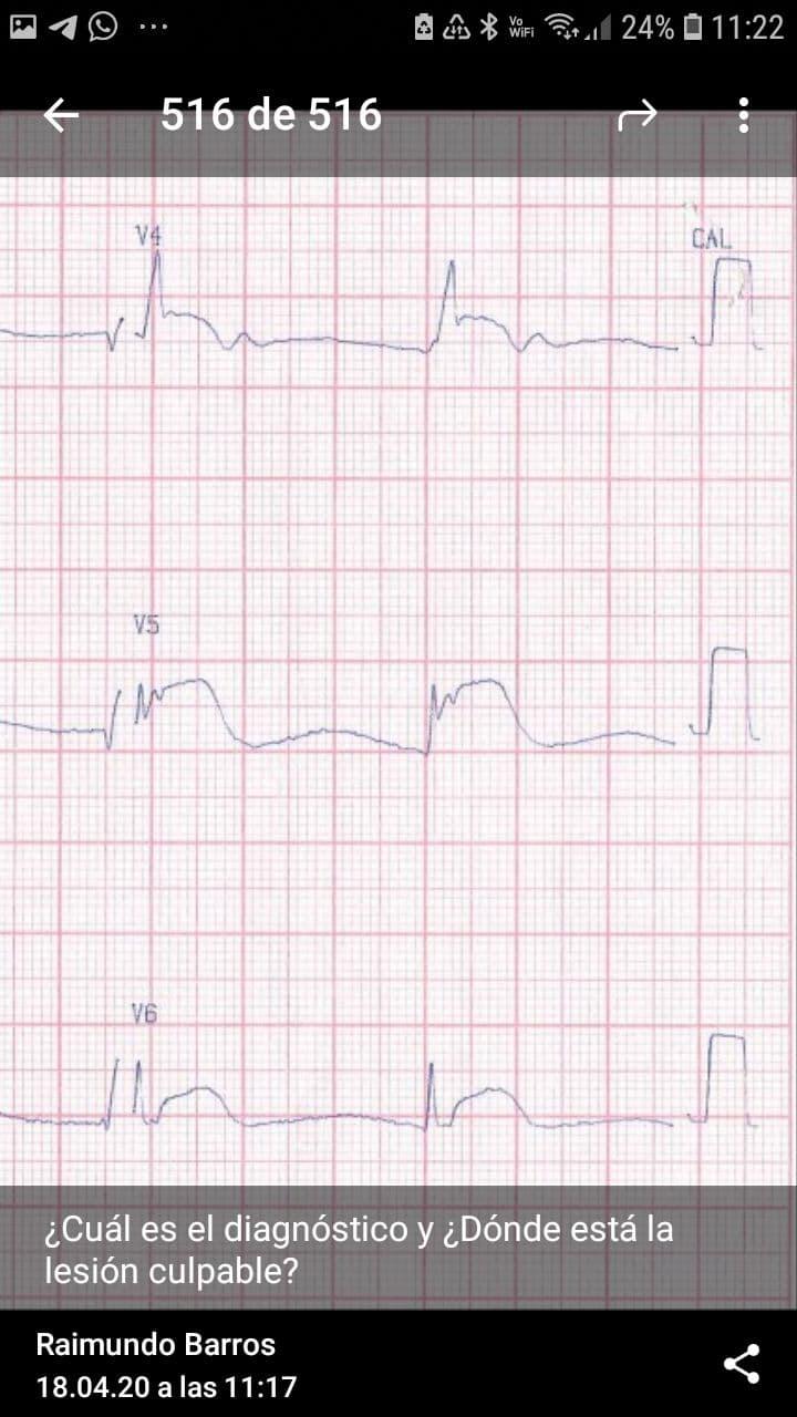 Paciente con insuficiencia renal crónica dialítica que pierde dos sesiones de hemodiálisis y cursa con cuadro de pericarditis urémica e hiperpotasemia con mejoría post diálisis