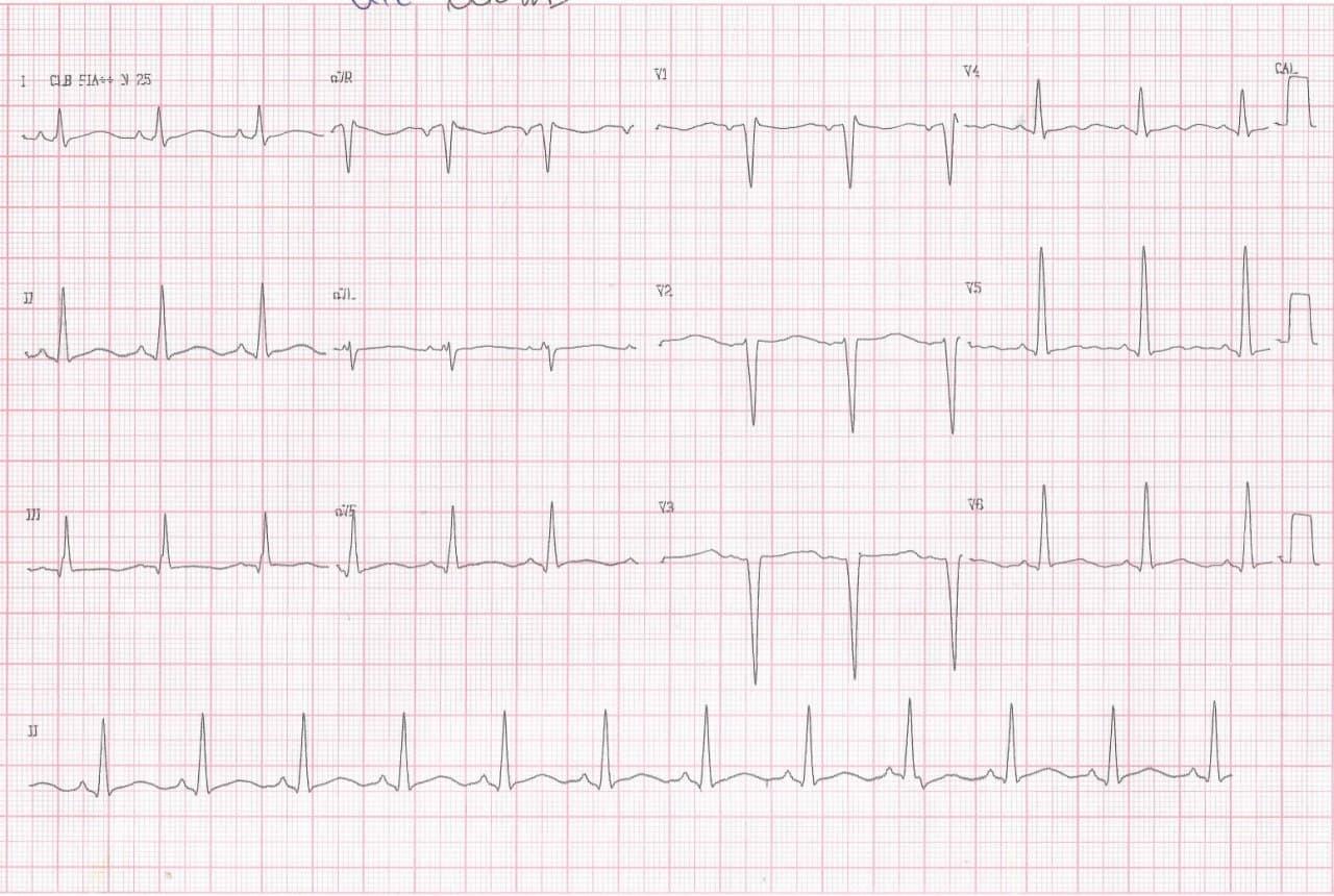 Paciente masculino de 67 años, HTA y DBT, con antecedente de infarto previo cursando infección respiratoria que es tratada con azitromicina  cuyo ECG presenta QTL adquirido
