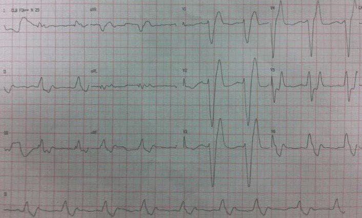 Hombre de 52 años portador de diabetes tipo II, HTA, insuficiencia cardíaca y EPOC con fatiga y letargo en quién se constata severa hiperpotasemia