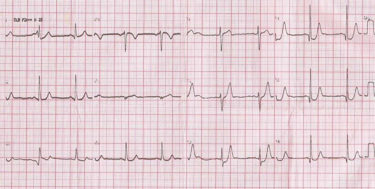Paciente con episodio de ángor prolongado por SCA que presenta patrón de Winter por compromiso de la DA proximal