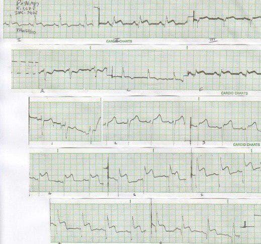 Paciente de 33 años portador de una miocardiopatía hipertrófica cuyo ECG simula infarto de miocardio