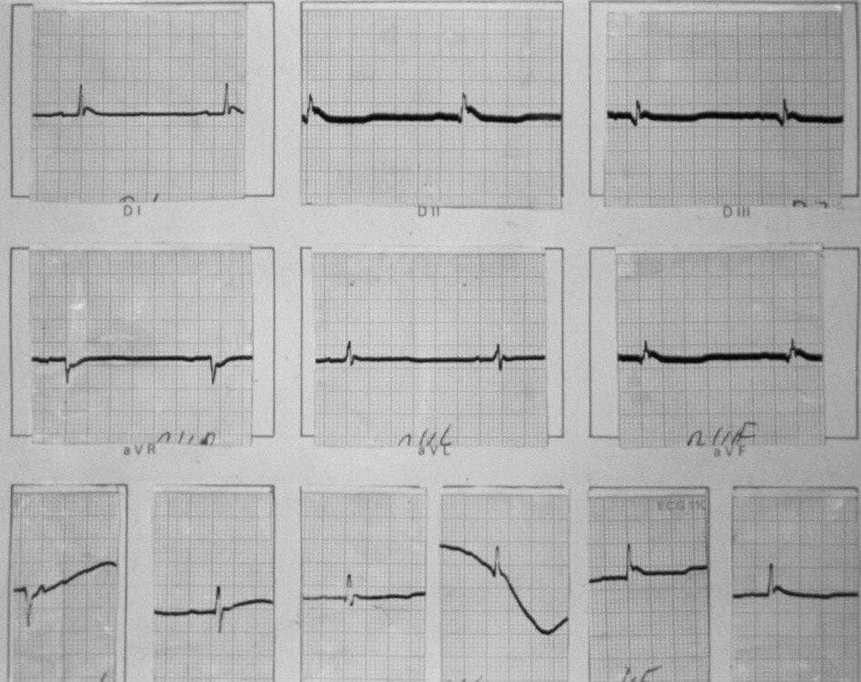 Hombre de 63 años en estado terminal de shock séptico hallado en coma, con franca hipotermia que presenta ondas de Osborn en el ECG