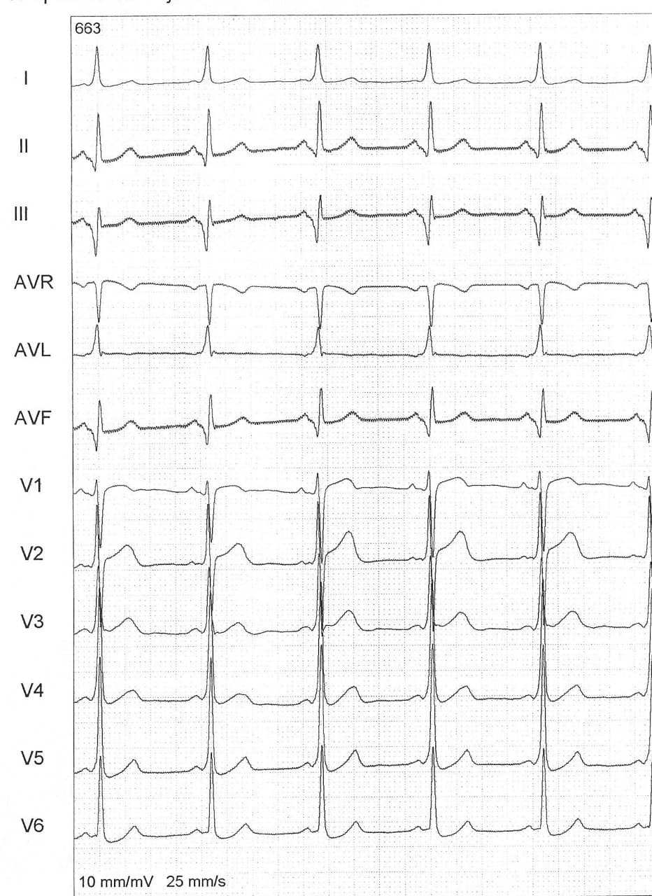 Hombre de 61 años, diabético que presenta palpitaciones recurrentes por presencia de vía accesoria y patrón ECG de «pseudo infarto inferior» sometido a ablación exitosa de la vía