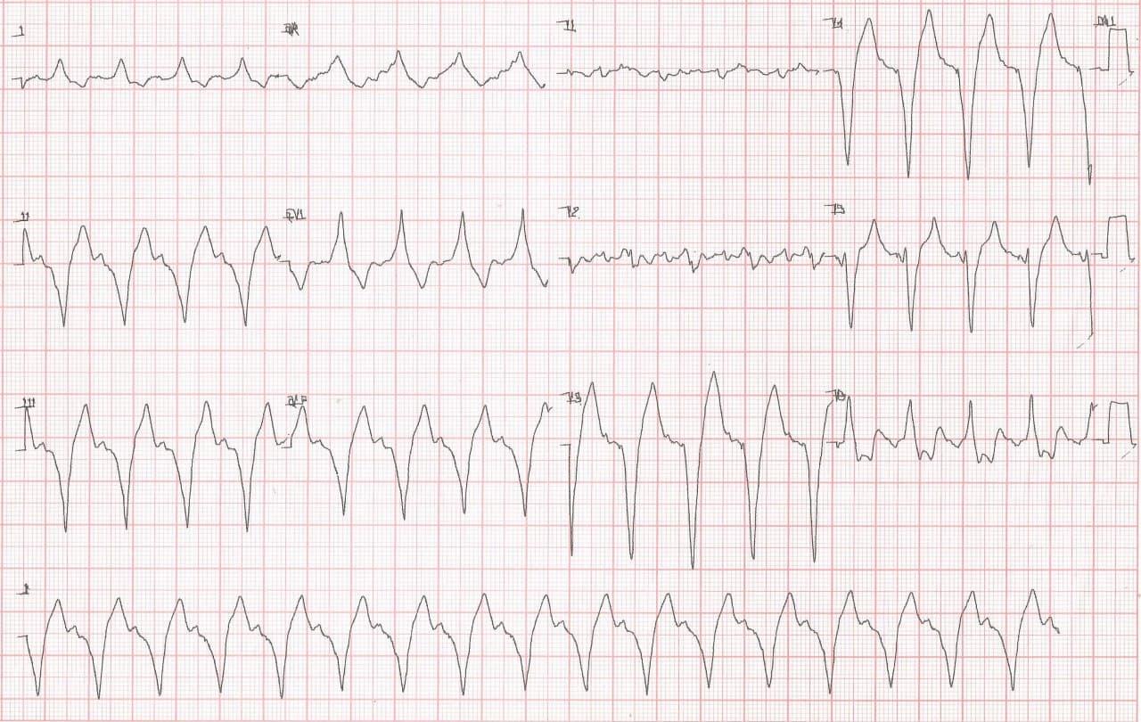 Paciente de 65 años, hipertenso y diabético con MP implantado previamente por BAVC que consulta por disnea que cursa con severa hiperpotasemia