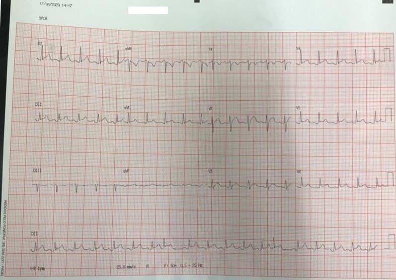 Paciente masculino de 30 años que cursa con cuadro febril de 6 días de evolución, dolor de tipo pericardítico, troponina elevada debido a miopericarditis en contexto de COVID 19 +
