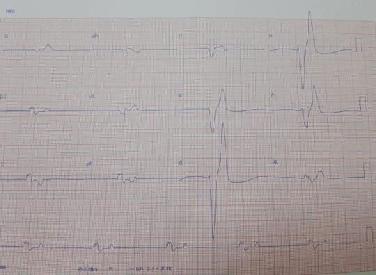 Paciente masculino polimedicado que cursa con diarrea y vómitos, con severa hiperkalemia de 8,1 mEq/l