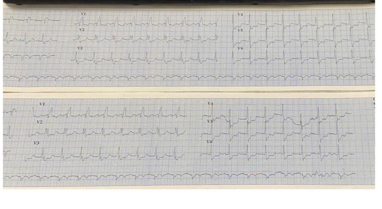ECG perteneciente a un paciente de quién se ignoran datos clínicos, excepto estar afectado por COVID 19, en ventilación mecánica, con troponina + que evoluciona al óbito